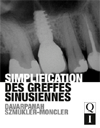 <p>Simplification des greffes sinusiennes (Best seller) </p>