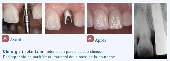 chirurgie buccale : pilier, implant, couronne
