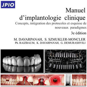 3è manuel d'implantologie clinique